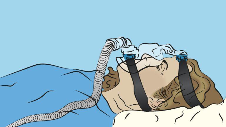 En pasient som får hjelp ved å bruke en CPAP ventil